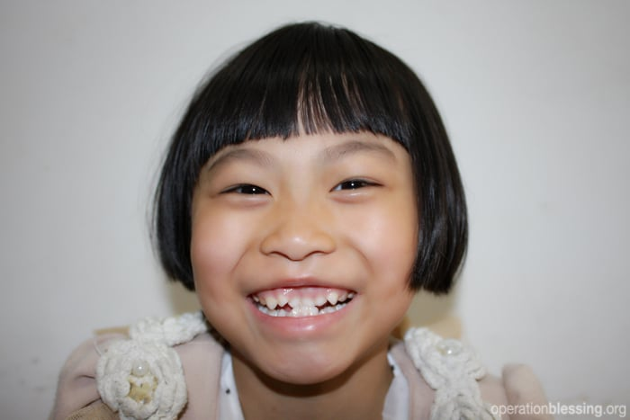 An Operation Blessing-sponsored surgery offers a young girl in China a whole new life