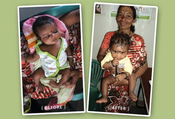 Operation Blessing helps a little girl receive the miracle of a life-changing surgery and learn to walk