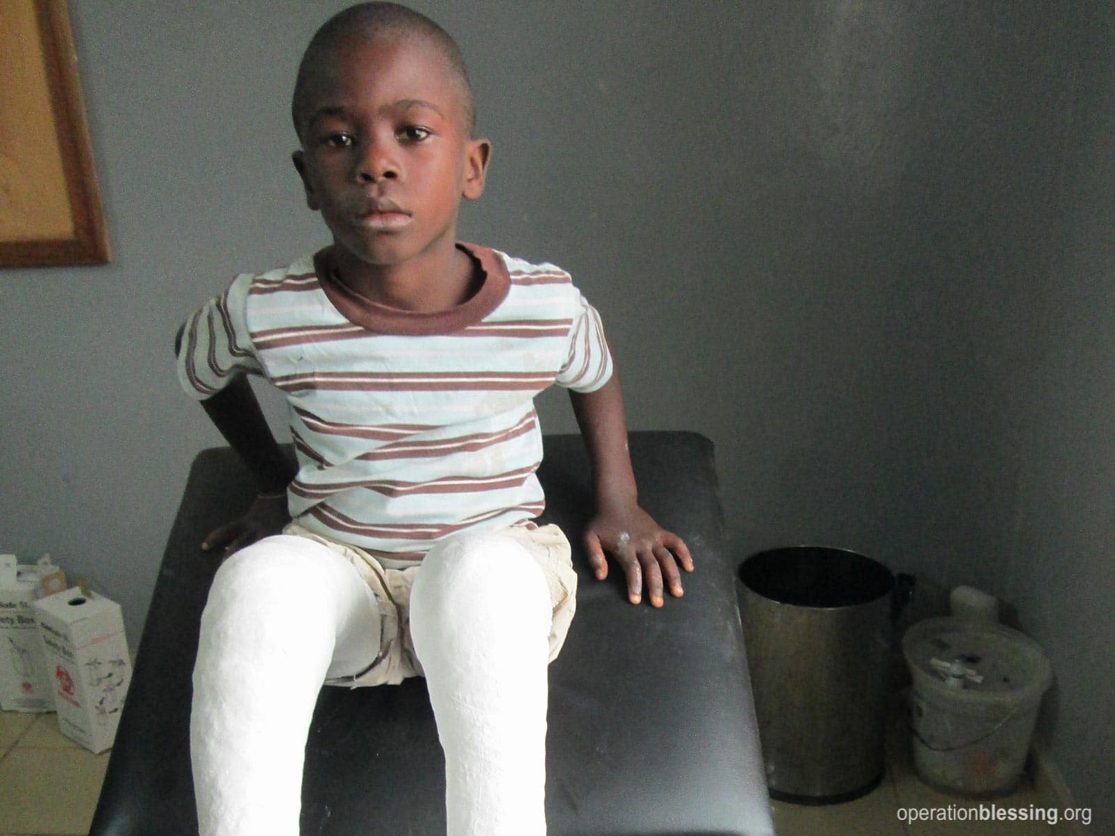 Mustapha with casts on his legs.