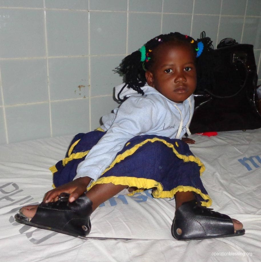 Mary undergoes treatment for bilateral clubfoot.