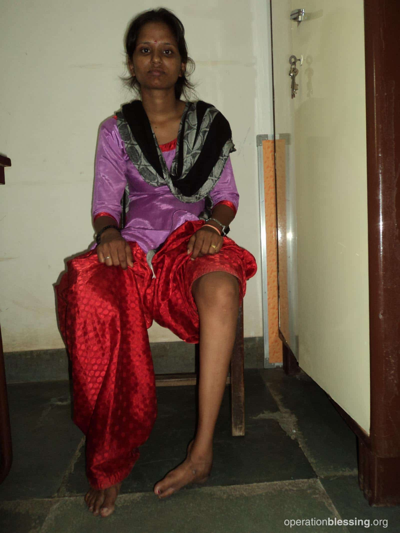 Sangeeta from India sits showing her uncorrected clubfoot in need of treatment.