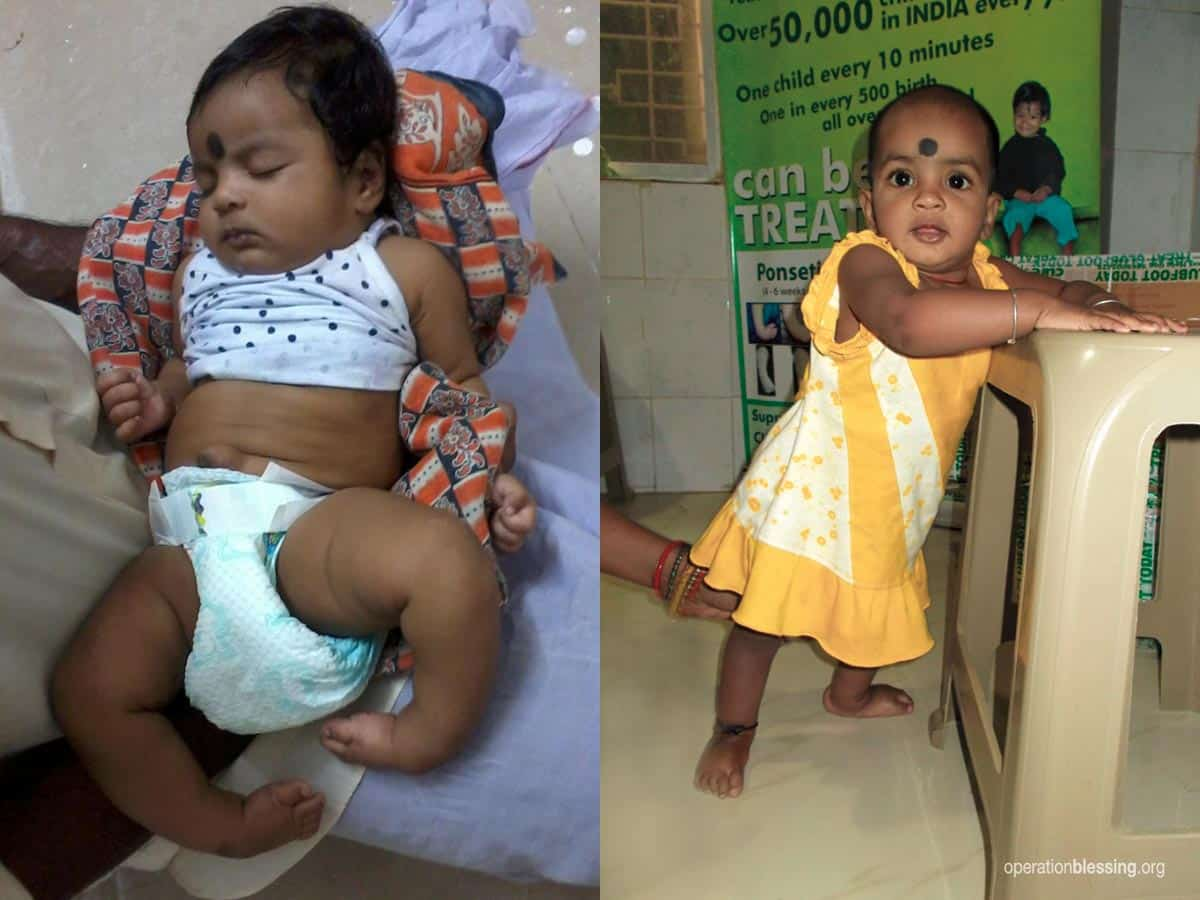 Rupasi before with her feet turned in. Rupasi after, standing after help from MiracleFeet, one step closer to walking!