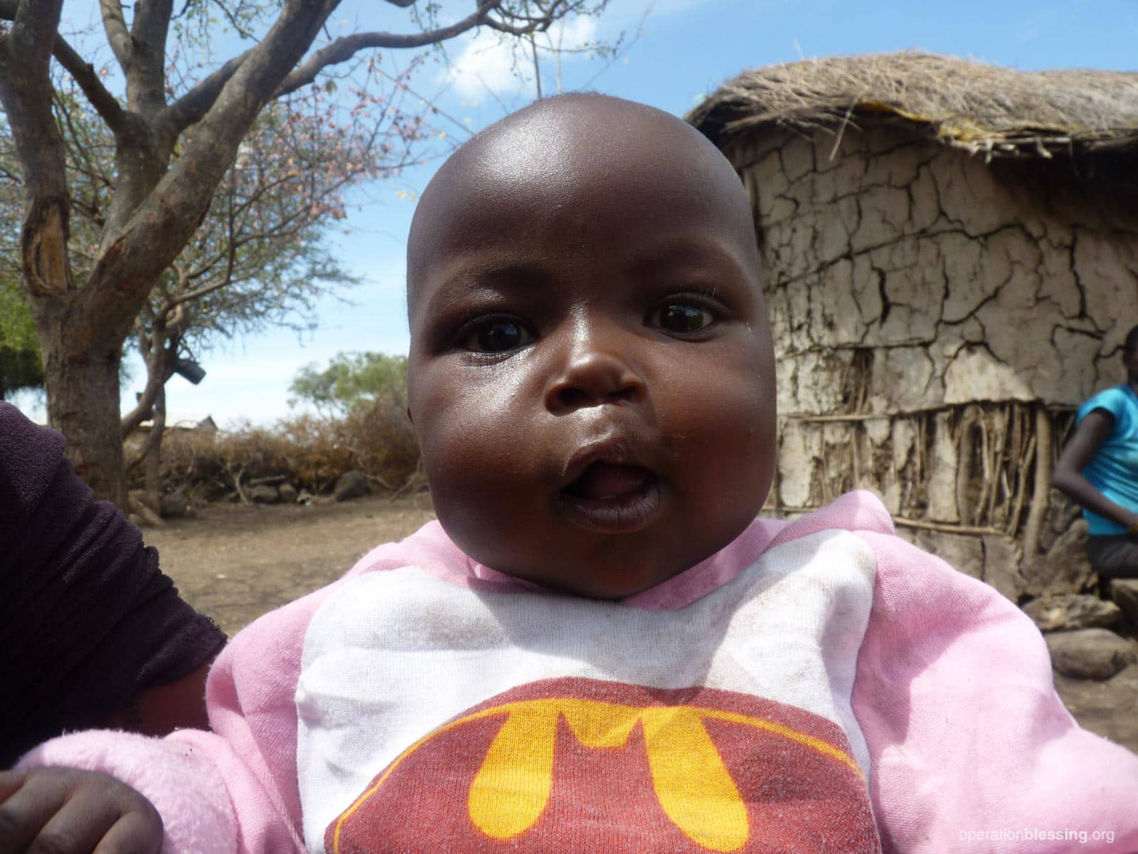 Baby Nkunkat after successful cleft lip surgery provided by Operation Blessing.