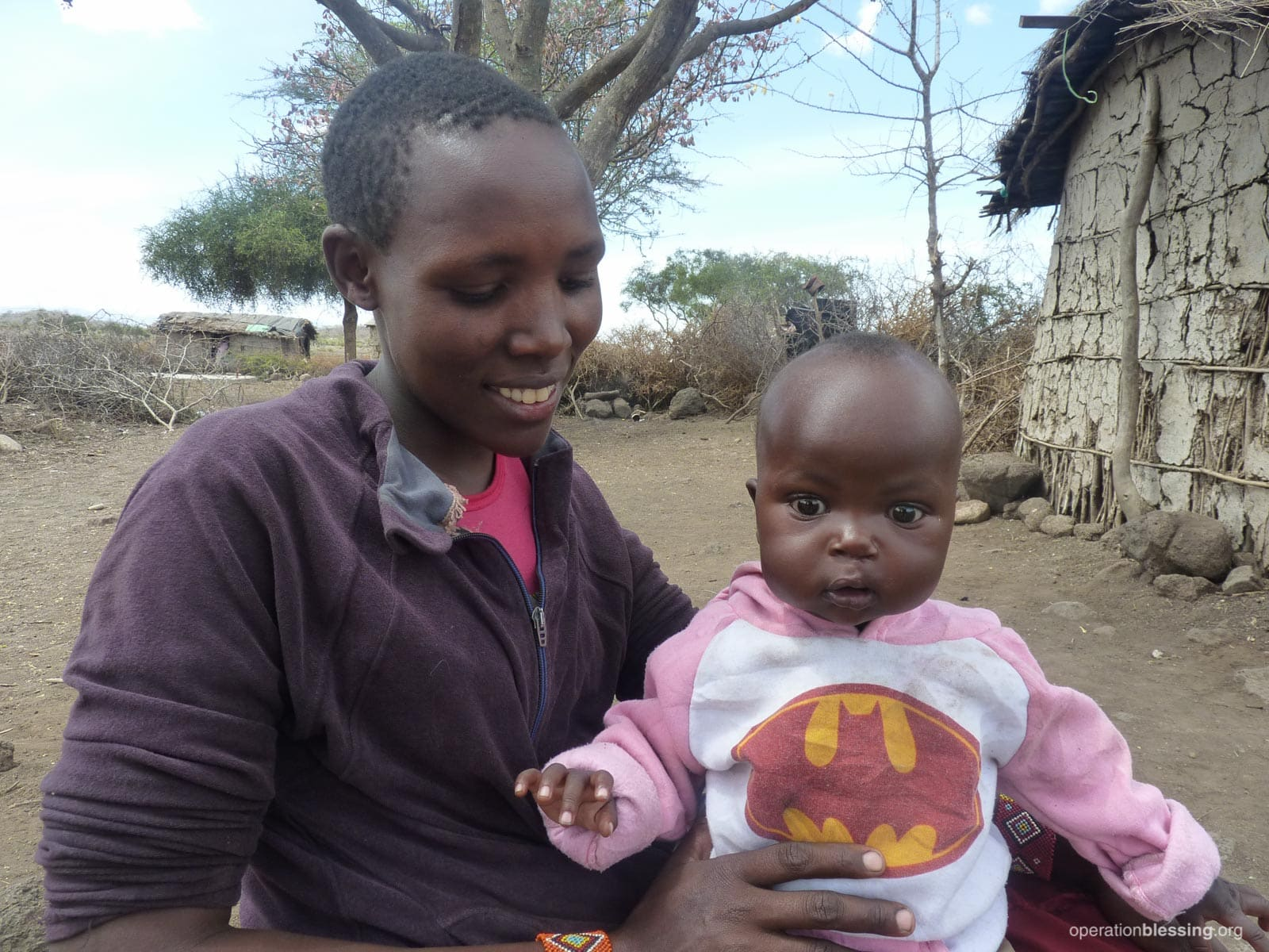 Baby Nkunkat in Kenya sits with his mother after successful cleft lip surgery