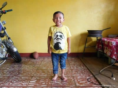 Angel standing tall after his clubfoot treatment.