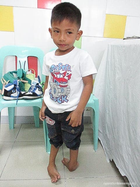 Before his recent clubfoot treatment, James' condition was extreme with his one foot twisting backward.