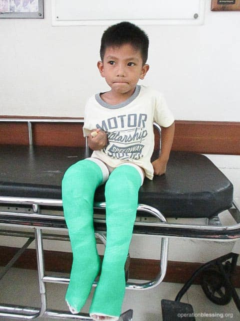 James during the casting phase of his clubfoot treatment.
