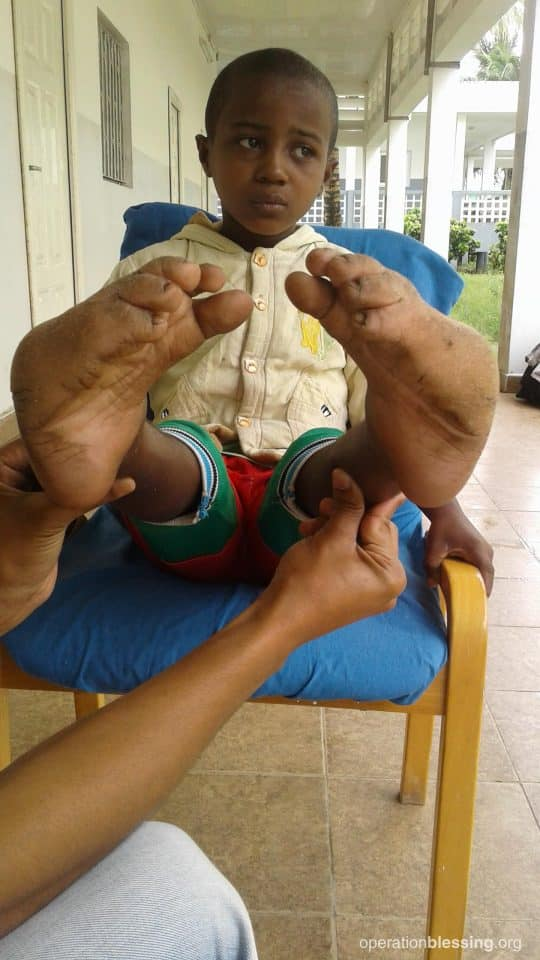 Juldo before clubfoot treatment.