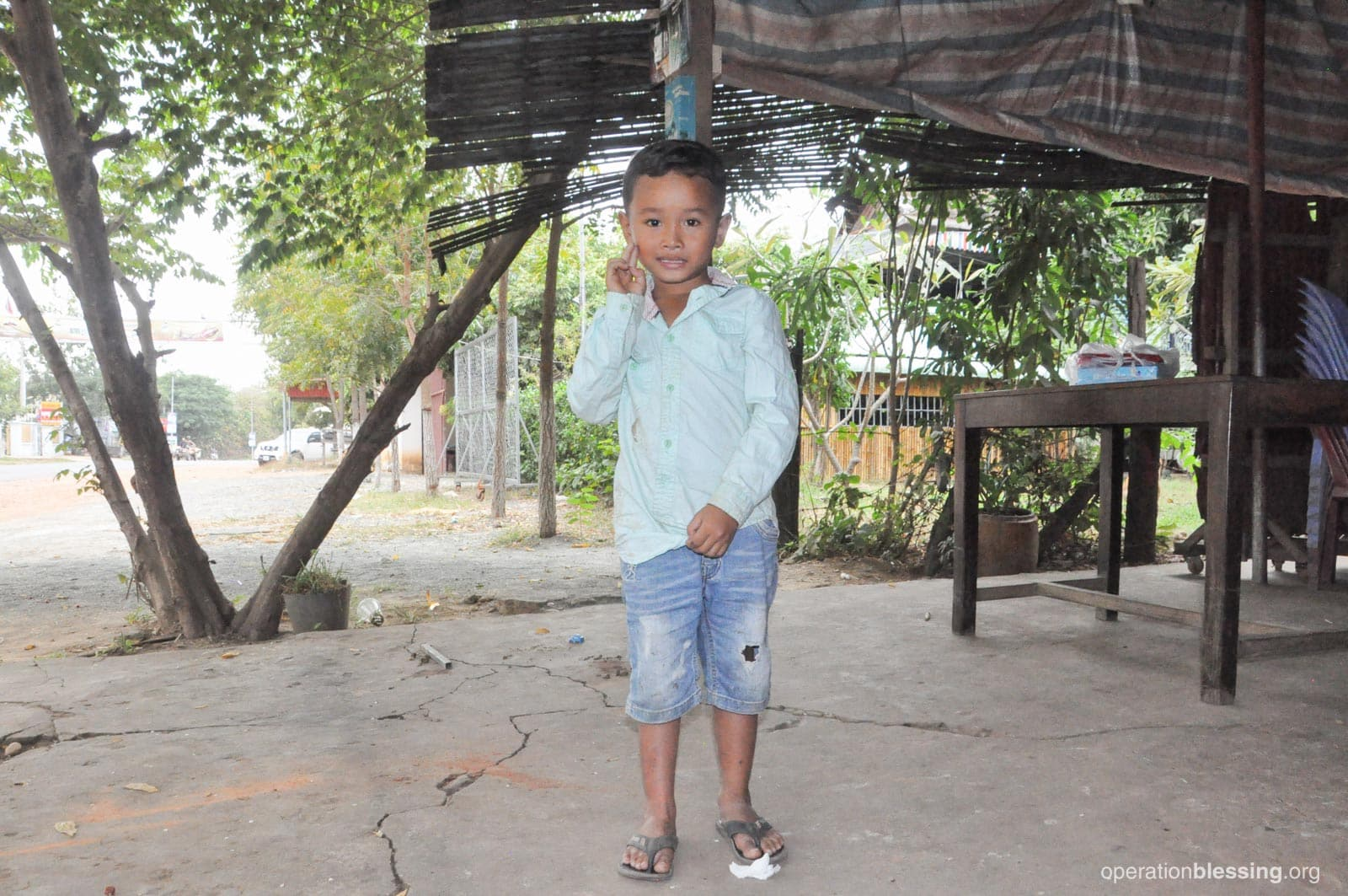 Rottanak standing on straight feet after his clubfoot treatment.