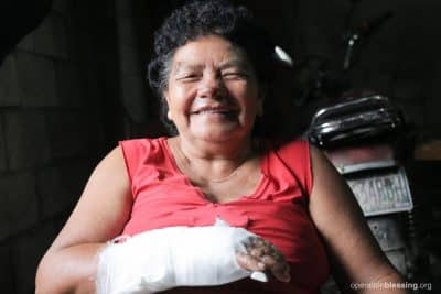 Brigida smiles and shows her bandaged hand, where she suffered a burn from the Fuego eruption, after receiving medical care from Operation Blessing in Guatemala.