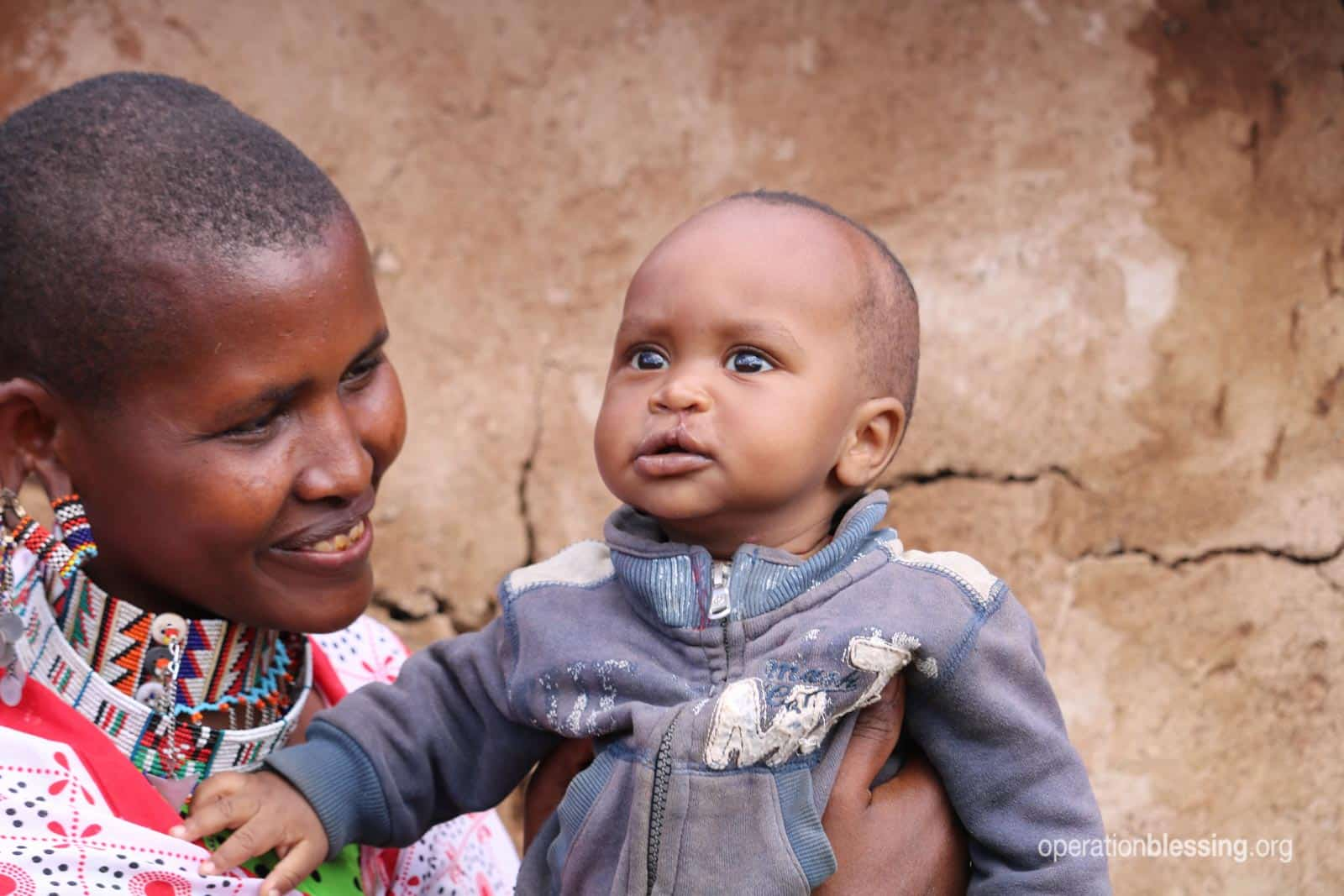 Isaac's mother proudly holds him for the camera after his surgery for cleft lip.