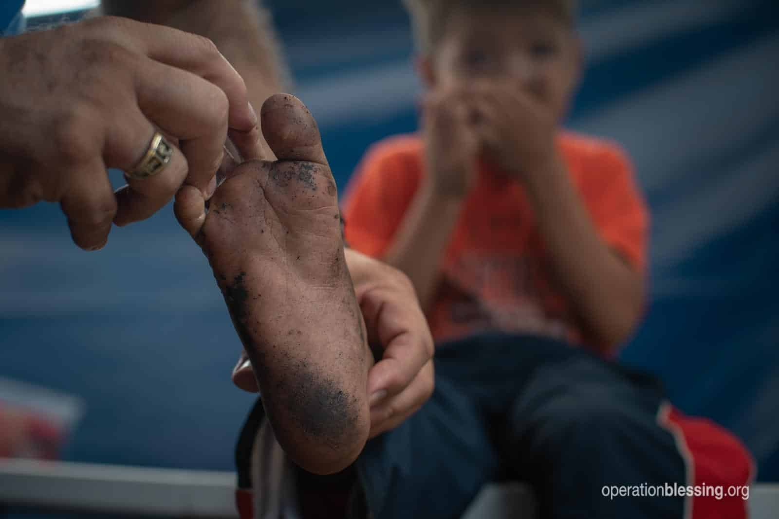 The dirty injured foot of a young Venezuelan refugee.