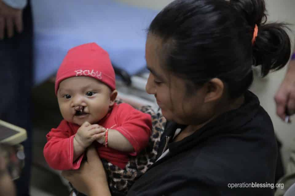 Wilson received a life-changing surgery for his cleft lip.