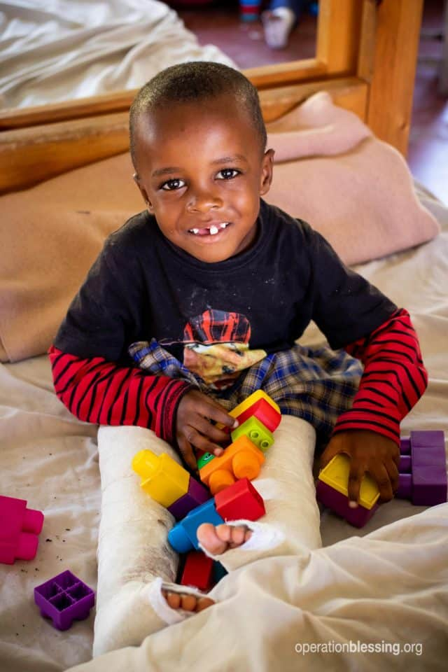 Sadiki smiles with casts on his legs after his transforming surgery.